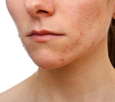 acne_web